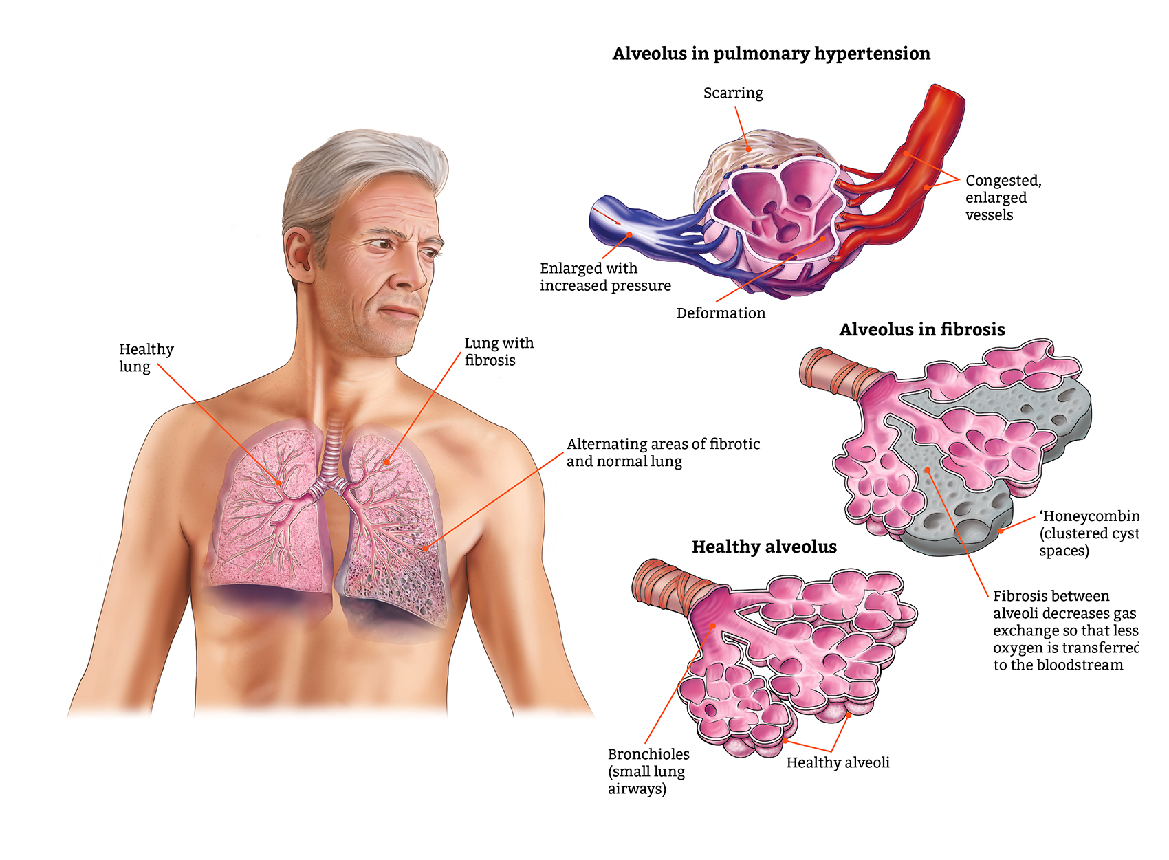 https://vicorepharma.com/wp-content/uploads/2019/05/tabs-2-and-6-illustration-fibrotic-lung-disease.jpg